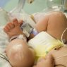 AAP Report Focuses on NICU Preparedness Planning