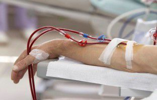 Frequent Dialysis Poses Risks for Kidney Disease Patients