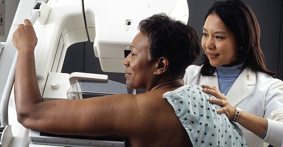 Frequency of Screening Mammography Study