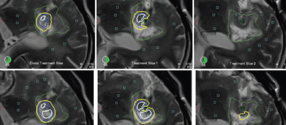New MRI-Guided Laser Treatment for Brain Tumour