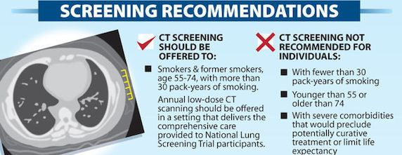 New USA Lung Cancer Screening Guidelines