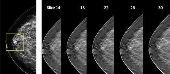 Hologic's Breast Tomosynthesis Reduces Recall Rates and Improves Cancer Detection - U.S. Study