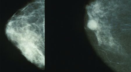 Even Expert Mammographers Can Miss Breast Cancer Cases