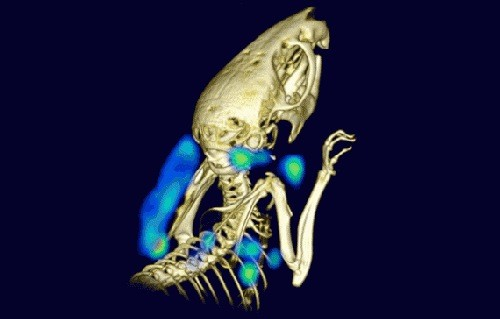 Noninvasive Imaging of Immune System Detects Tumours