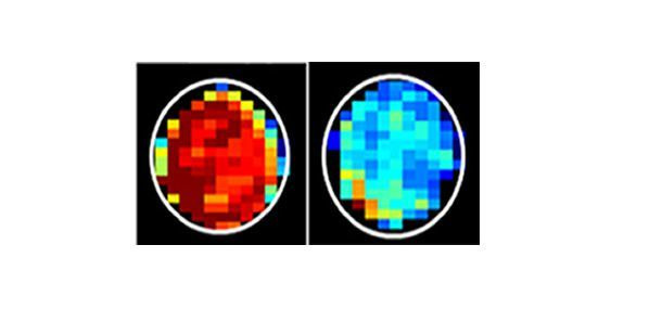 MRI Detects Cancerous Cells