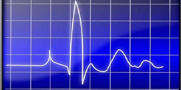 New Mathematical Model Helps Digitalise Heart Rhythms