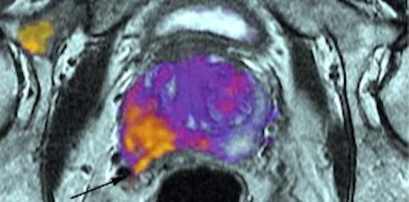 RSI-MRI Detects Spread of Cancer Beyond Prostate