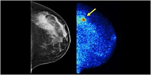 New Breast Exam Quadruples Breast Cancer Detection