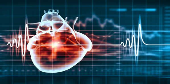 New Software Could Predict Sudden Cardiac Death