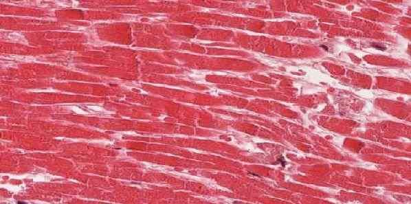 Heart Muscle Inflammation Peaks Twice after MI