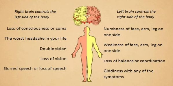 Coping with Pre-Hospital Stroke Symptoms