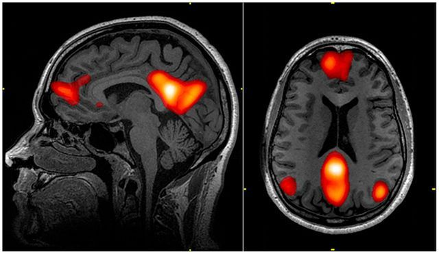 Neuroimaging For Personalised Pain Therapy