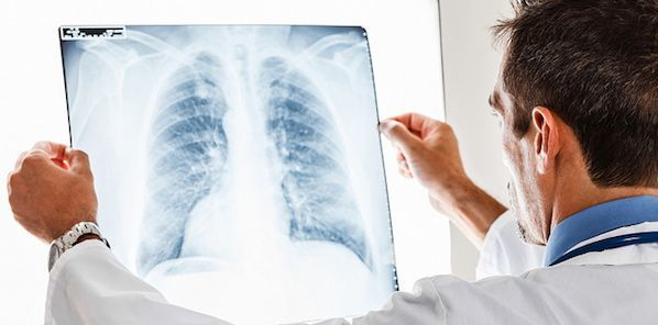Low-Dose CT Beats X-Ray in Lung Cancer Detection