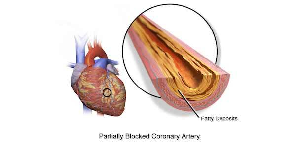 Severe Calcification Ups Risk of Cardiovascular Event