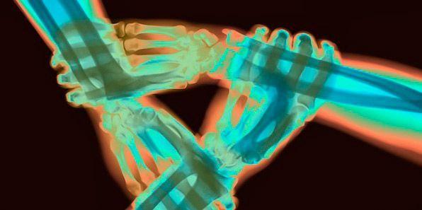 British Institute of Radiology Announces New SIG