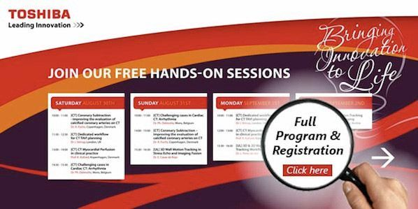 ESC 2014: Toshiba Medical Systems Offers Free Workshops