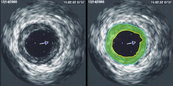 FFR and IVUS-Guided PCI vs Standard PCI