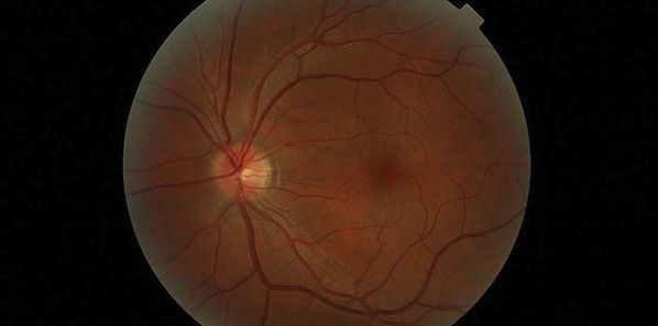 Noninvasive Retinal Imaging Tool For  Alzheimer's Detection