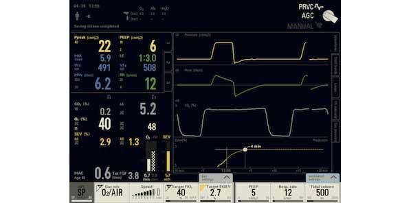 Maquet Critical Care launches AGC, Automatic Gas Control