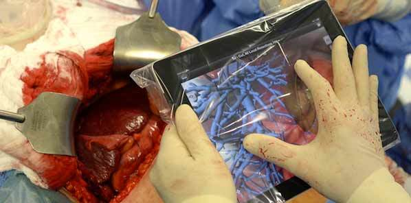 Surgical Simulator Guides Operations From All Angles