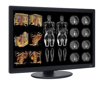 New Benchmark: Dome S6c LED Color Radiology Display Launched