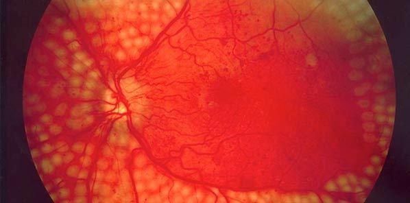 Cardiac Biomarkers Predict Diabetes Complications