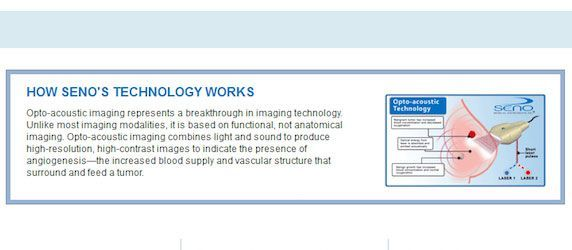 Data: Seno Medical Instruments' Imagio® Might Eliminate Breast Biopsy Need