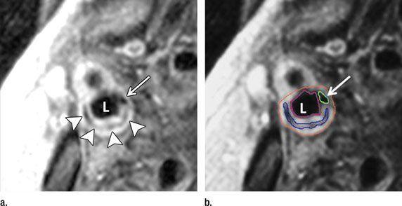 Carotid Artery MRI Predicts Strokes and Heart Attacks