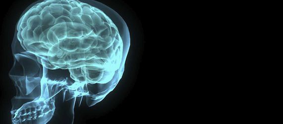 Traumatic Brain Injury Associated with Premature Death