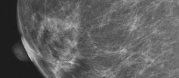 RSNA 2013: Breast Cancer Risk Related to Changes in Breast Density as Women Age