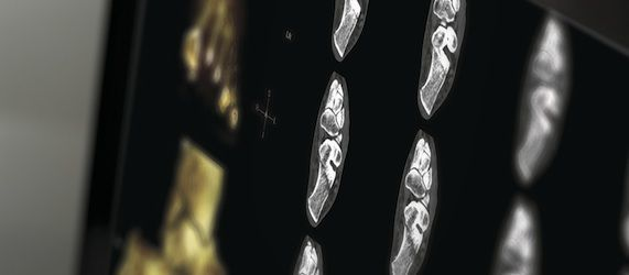 RSNA 2013: Barco to Present Portfolio of Imaging Solutions Focused on Connectivity