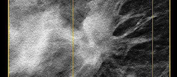 RSNA 2013: Hologic to Showcase its 3D Imaging Portfolio