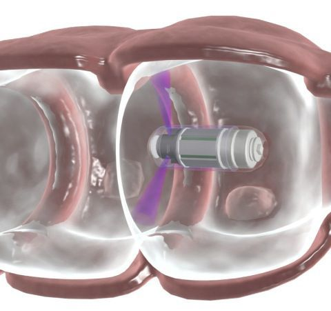 Colon Imaging of the Future: Swallow a Capsule