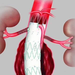 New Minimally Invasive Procedure for Abdominal Aortic Aneurysms