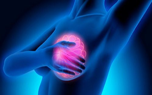 MRI Detects Breast Cancer with High Accuracy