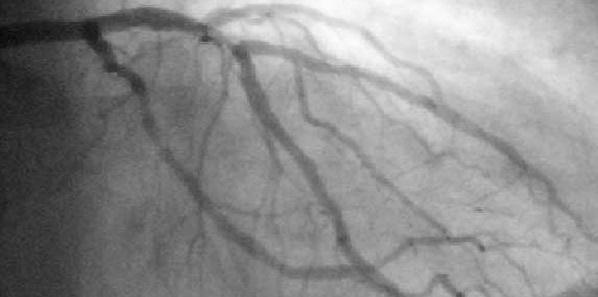 Anticoagulant Bivalirudin May Improve Outcomes Compared to Heparin