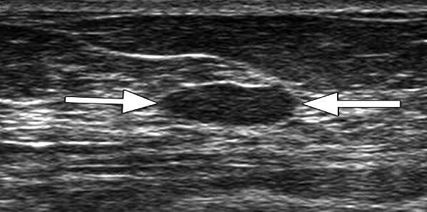 Point-Of-Care Ultrasound Potential And Limitations -1379