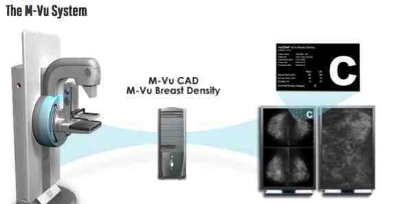 RSNA 2014: VuCOMP Showcases Industry-Leading Computer Vision Systems for Breast Cancer Detection