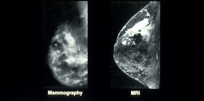3-Minute Breast MRI 'Better than Mammography'