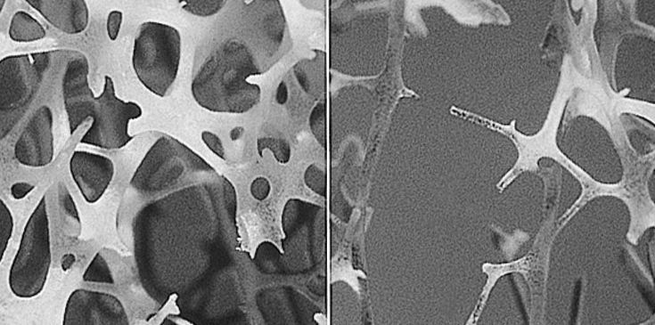 New Tool to Prevent Osteoporotic Fractures