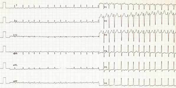 P-wave Morphology and Ischemic Stroke