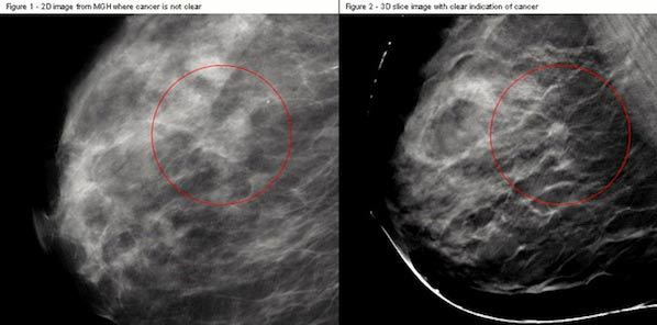 3-D Breast Imaging Improves Mammography Accuracy