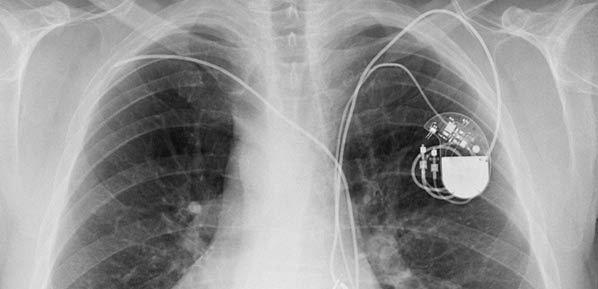 Study: Defibrillator Testing Prior to ICD Procedure Unnecessary