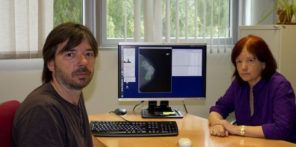 Breast Density: New Software Developed by Spanish Researchers