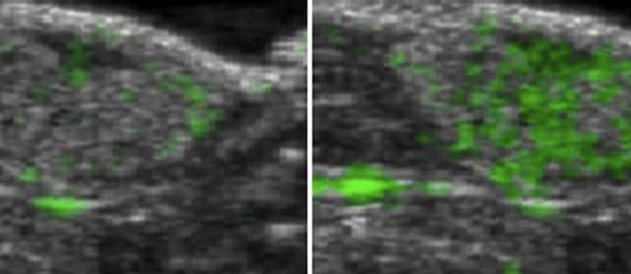 Improved Ultrasound Imaging Enables Tumour Visualisation