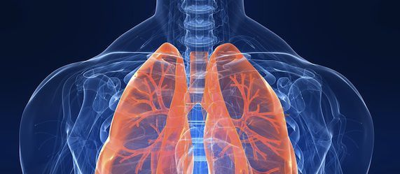 Low-Dose CT Screening for Lung Cancer Potentially Leading to Overdiagnosis