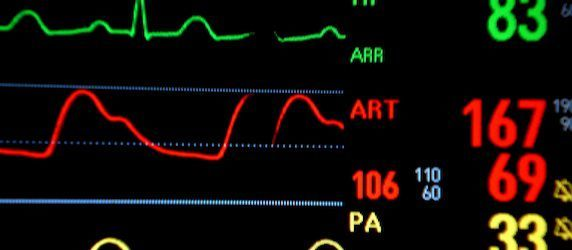 New Scan Identifies Heart Attack Risk