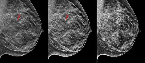 3D Mammography Named 'Hottest Clinical Procedure' For The Fourth Consecutive Year