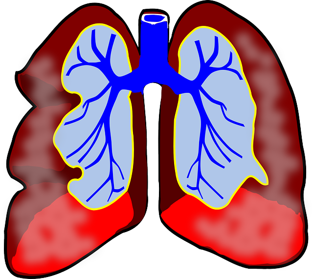 For Lung Transplant, Researchers Surprised to Learn Bigger Appears to Be Better