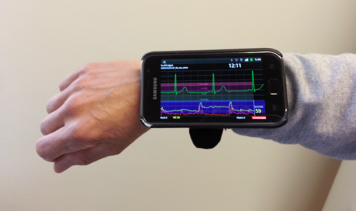 ECG into Your Mobile